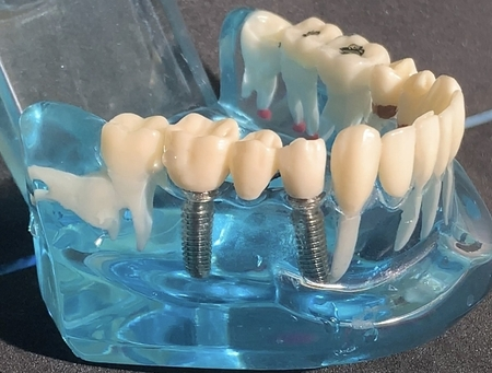 Zahnklinik für Implantologie, Implantat, Zahnimplantat und Oralchirurgie